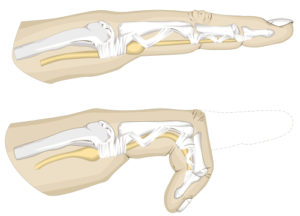A illustration of trigger finger. Credit: Shutterstock